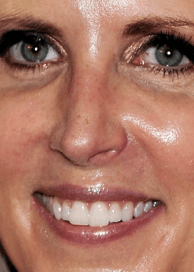 Are Ann Coulter's Eyelashes the Real Deal?